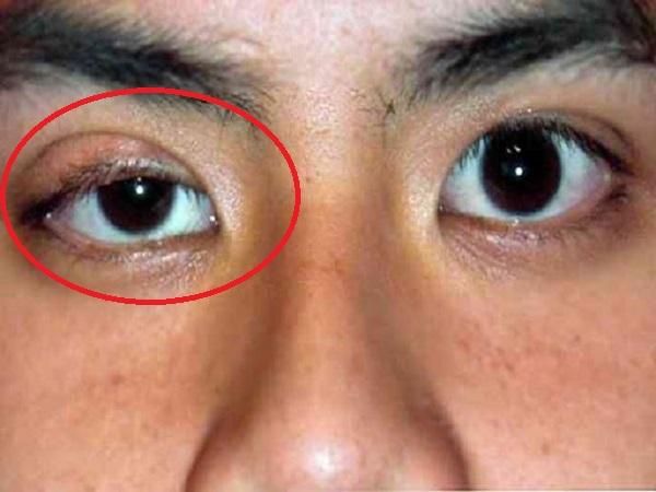 Nhìn vào mắt nếu thấy có dấu hiệu này phải đi khám ngay vì UNG THƯ PHỔI ĐÃ NGHIÊM TRỌNG