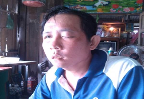 Nhổ răng làm mù mắt, người đàn ông gửi đơn 'kêu cứu' - Ảnh 1