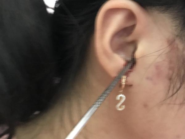 Bất cẩn khi ngoáy tai, một bé gái nhập viện do thanh inox nhọn cắm thẳng vào tai