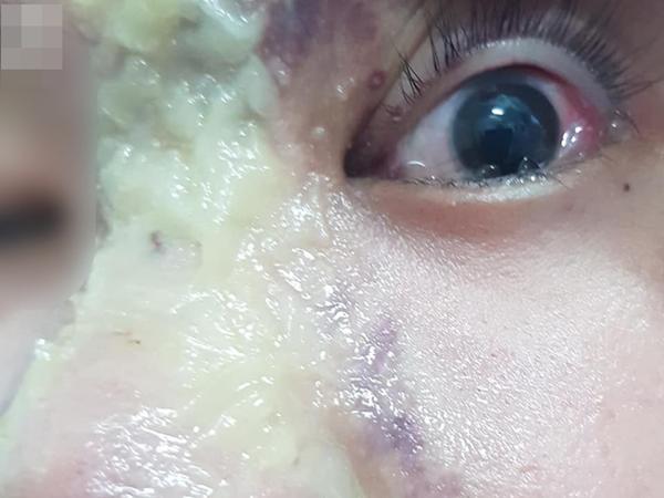 Nhẹ dạ đi tiêm filler nâng mũi tại spa trôi nổi, thiếu nữ 15 tuổi bị mù vĩnh viễn mắt trái ngày cận Tết