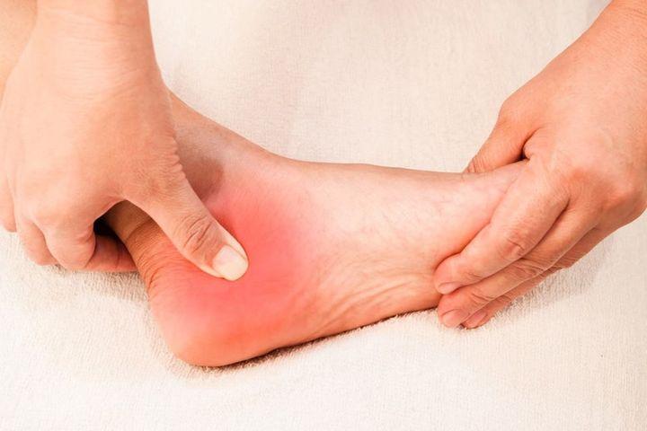 Nhìn bàn chân đoán bệnh: Có 4 điểm bất thường trên bàn chân, cần đi khám thận khẩn cấp - Ảnh 3