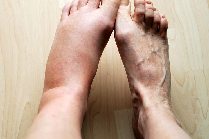 Nhìn bàn chân đoán bệnh: Có 4 điểm bất thường trên bàn chân, cần đi khám thận khẩn cấp - Ảnh 4