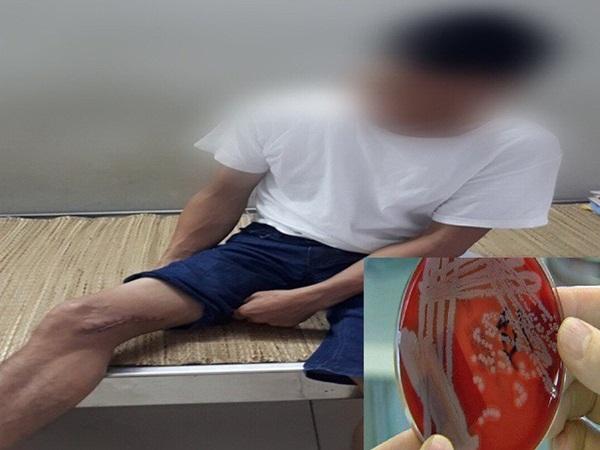 Thái Nguyên: Người đàn ông mắc bệnh Whitmore sau khi bị bừa đâm vào đùi