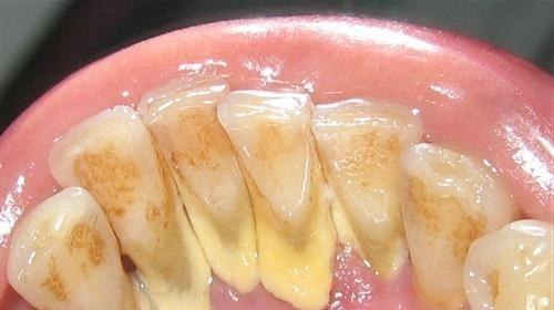 Ngậm một ngụm nước này 2 phút, cao răng bong ra từng mảng, ố vàng, hôi miệng kinh niên cũng khỏi ngay tức khắc không cần đi nha sĩ - Ảnh 1