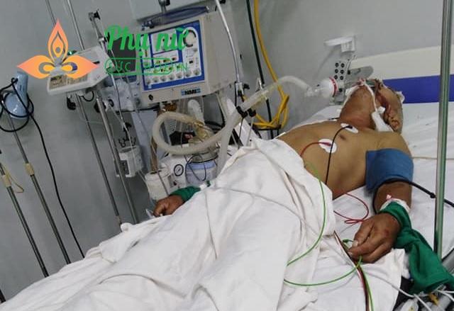 Mẹ mất vì bị ung thư máu, cha bị tai nạn vỡ hộp sọ, 4 anh em khóc ròng xin mọi người giúp đỡ cứu lấy cha - Ảnh 1