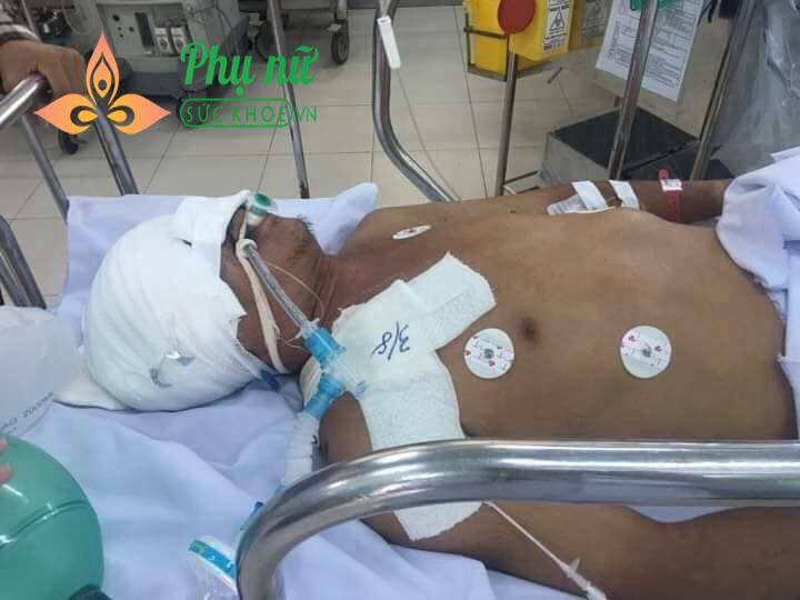 Mẹ mất vì bị ung thư máu, cha bị tai nạn vỡ hộp sọ, 4 anh em khóc ròng xin mọi người giúp đỡ cứu lấy cha - Ảnh 3