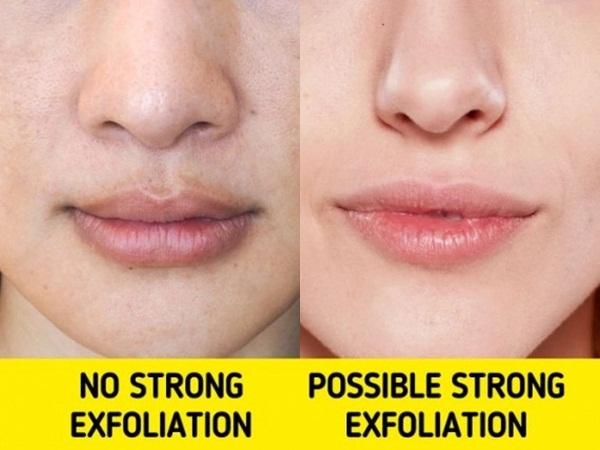 10 mẹo se khít lỗ chân lông giúp bạn lấy lại làn da tươi sáng, khỏe đẹp