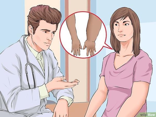 5 nguyên nhân không ngờ khiến bàn tay của bạn đột nhiên sưng phù lên