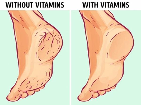 6 nguyên nhân làm gót chân bị nứt nẻ xấu xí và cách điều trị tại nhà hiệu quả