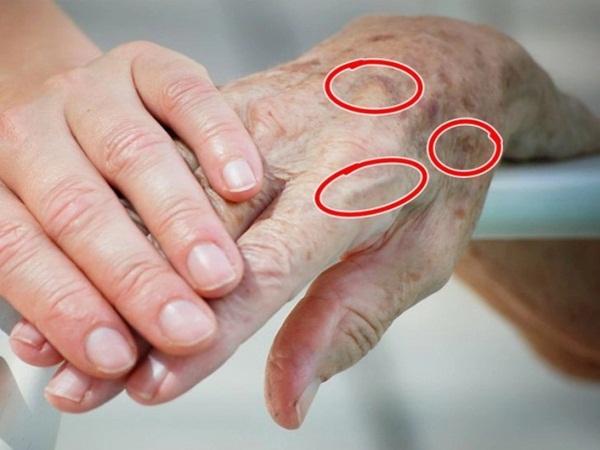 7 bộ phận bên ngoài cơ thể nói lên tuổi thật của bạn