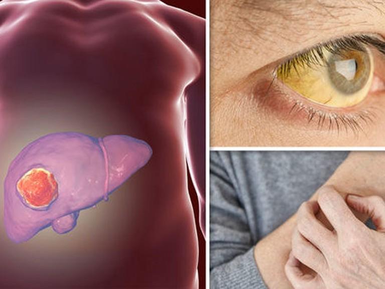 WHO công nhận đây là 'chất gây ung thư hạng nhất' và ẩn náu trong nhiều loại thực phẩm mà nhiều người vẫn không nỡ vứt đi - Ảnh 3