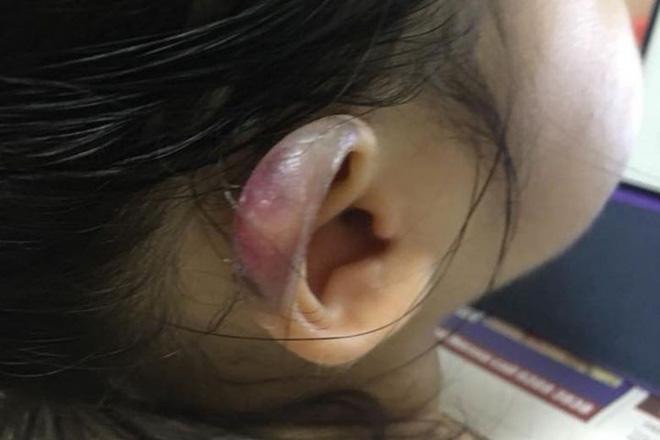 Đón con gái 3 tuổi từ nhà trẻ về, cha mẹ chết lặng khi phát hiện tai con bị sưng phồng biến dạng - Ảnh 1