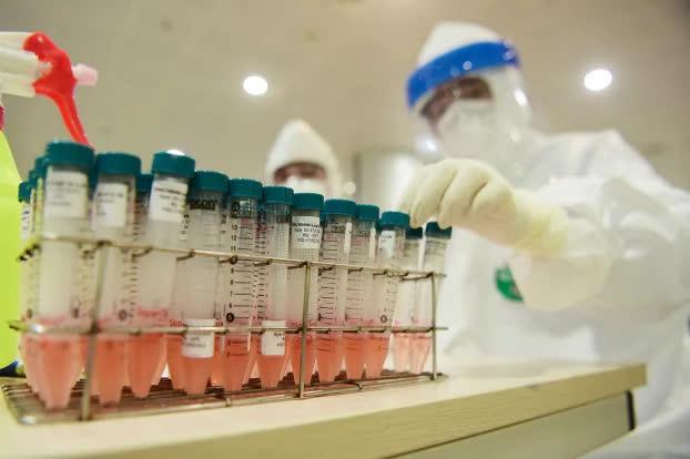 Vì sao một số bệnh nhân xét nghiệm lần thứ 3 mới phát hiện nhiễm COVID-19? - Ảnh 1