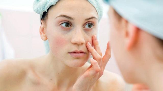Thời tiết hanh khô có thể gây ra tình trạng da bong tróc, dễ bị kích ứng: Bạn tuyệt đối không nên chủ quan với những điều này! - Ảnh 2