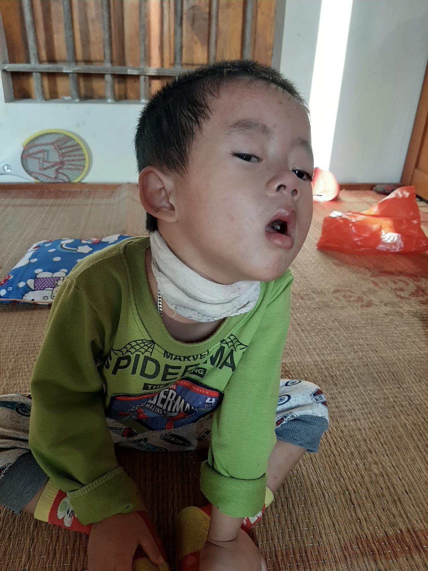 4 đứa con sinh ra đều lần lượt chết yểu, người mẹ đau đớn chắp tay khẩn cầu cộng đồng cứu lấy đứa con còn lại - Ảnh 7