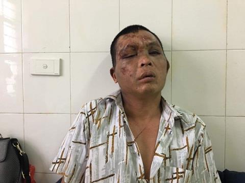 Người đàn ông bị đánh biến dạng mặt vì nghi bắt cóc bé gái 14 tuổi: Gia cảnh nghèo khó đến đáng thương - Ảnh 1