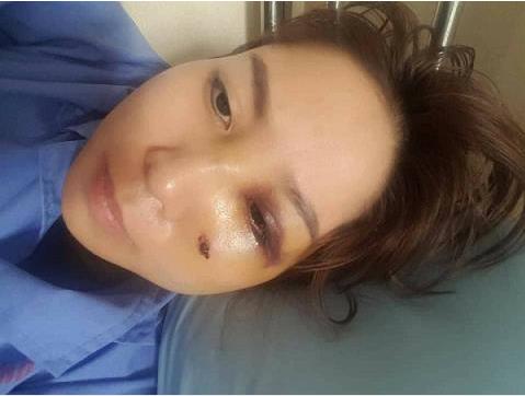 Lên Facebook nói xấu mẹ chồng, vợ bị chồng đánh gãy mũi, chấn động não - Ảnh 1