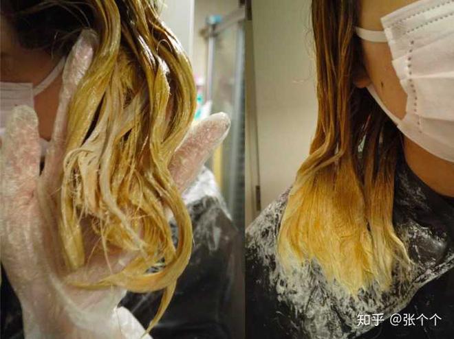 Nhuộm tóc liên tục 4 lần/tuần trong thời gian dài, một phụ nữ bị viêm phổi kẽ và phải dùng thuốc suốt đời - Ảnh 3