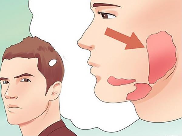 Bệnh quai bị: triệu chứng và cách chữa trị - Ảnh 1