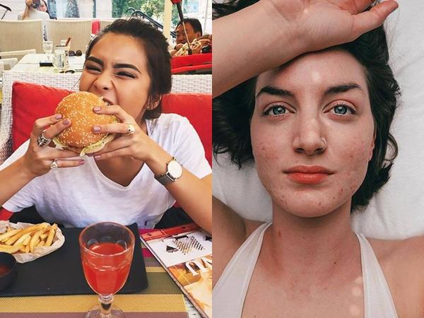 Nếu không muốn bị mụn chi chít trên mặt thì bạn nên hạn chế khẩn trương 6 loại thực phẩm này