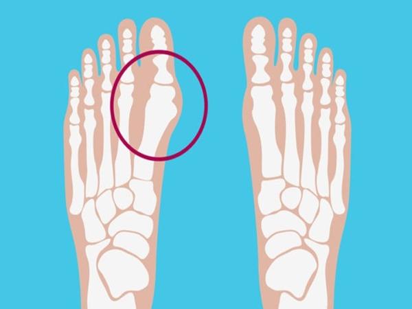 Những vấn đề thường gặp nhất ở bàn chân mà bạn không nên chủ quan coi thường