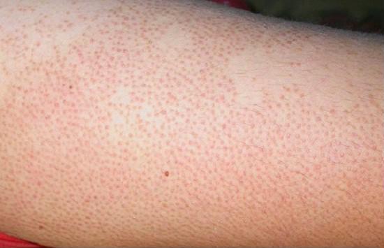 Xuất hiện những chấm trắng trên da như này, đừng chủ quan vì có thể là dấu hiệu của bệnh nguy hiểm - Ảnh 3