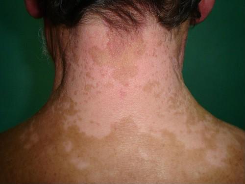 Xuất hiện những chấm trắng trên da như này, đừng chủ quan vì có thể là dấu hiệu của bệnh nguy hiểm - Ảnh 5