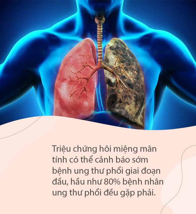 Miệng có mùi đặc biệt này không ung thư thì cũng suy thận, tiểu đường, can thiệp sớm sẽ phòng ngừa các biến chứng nguy hiểm - Ảnh 6