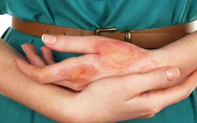 7 dấu hiệu bất thường trên da cho thấy đường huyết đang tăng cao, hãy can thiệp khẩn cấp để tránh các biến chứng nguy hiểm - Ảnh 4