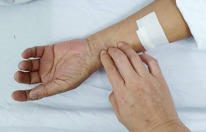 Bác sĩ chỉ cách hỗ trợ ca mắc Covid-19 nhẹ khỏi bệnh sau 1 tuần: Tưởng khó mà dễ - Ảnh 2