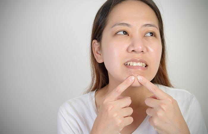 Thoát khỏi mụn đầu đen dưới cằm sau 1 tuần nhờ cách điều trị tại nhà không thể dễ hơn