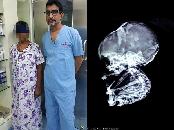 """15 năm sau khi phá thai, bà mẹ choáng váng khi phát hiện con vẫn còn trong bụng và hiện tượng bào thai """"hóa đá"""" hiếm gặp"""