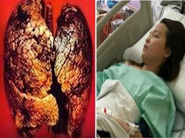 20 triệu chứng ung thư 'chết người' thường gặp mà hàng triệu người Việt vẫn bỏ qua