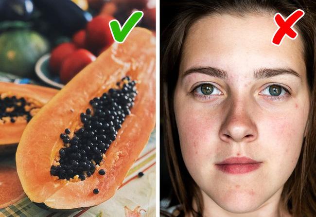 Ai đã từng bị mụn sẽ biết sẹo do mụn để lại xấu xí thế nào, thêm ngay 7 loại thực phẩm này vào bữa ăn để 'đánh bay' sẹo mụn đáng ghét - Ảnh 5
