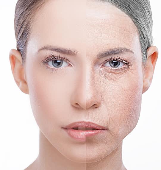 Chị em phụ nữ U30 phải áp dụng ngay cách này tại nhà để làm giảm nếp nhăn cho da mặt - Ảnh 1