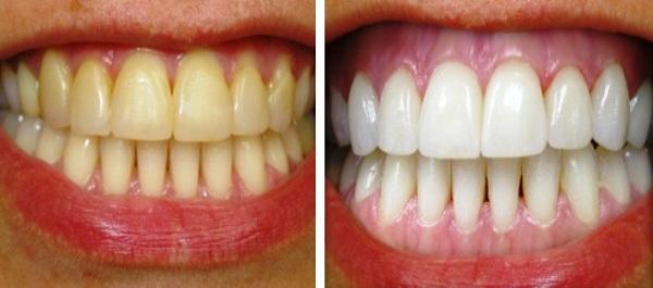 Độc chiêu hô biến răng vàng khè hóa trắng sứ, hôi miệng kinh niên cũng khỏi vĩnh viễn ngay tức thì chỉ nhờ 1 thìa sữa chua - Ảnh 4