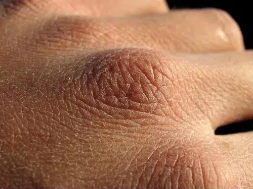Chuyên gia da liễu tiết lộ 3 bệnh về da thường gặp vào mùa đông, muốn phòng tránh phải làm đủ 10 điều quan trọng - Ảnh 1
