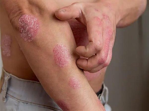 Chuyên gia da liễu tiết lộ 3 bệnh về da thường gặp vào mùa đông, muốn phòng tránh phải làm đủ 10 điều quan trọng - Ảnh 4