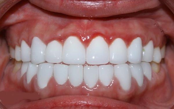 Nhai 1 nắm lạc sống trong 3 phút, cao răng cả năm không đi lấy cũng được 'cạo sạch' trắng sáng hơn cả đi tẩy ở nha khoa - Ảnh 4