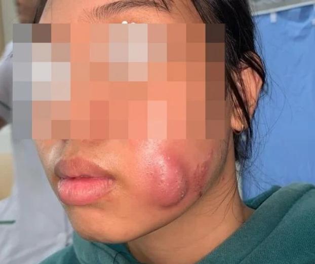 Cô gái trẻ bị sưng vù mặt vì tạo má lúm đồng tiền làm duyên - Ảnh 1