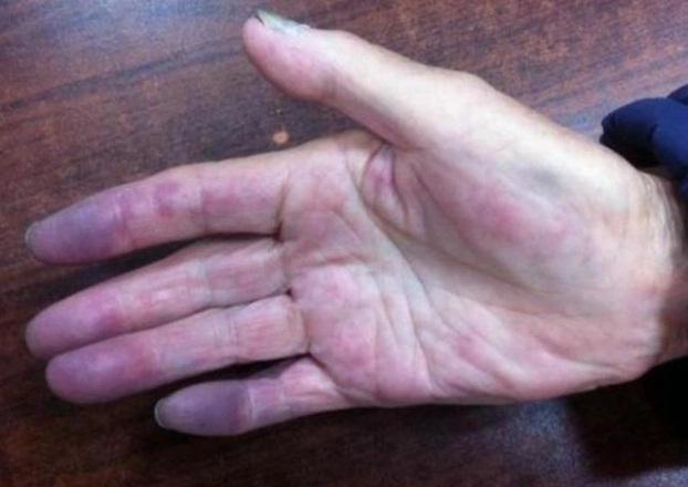 3 đặc điểm trên bàn tay chứng tỏ phổi bị tổn thương, ung thư đang ngấp nghé - Ảnh 1