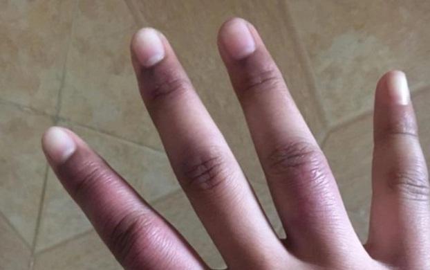3 đặc điểm trên bàn tay chứng tỏ phổi bị tổn thương, ung thư đang ngấp nghé - Ảnh 2