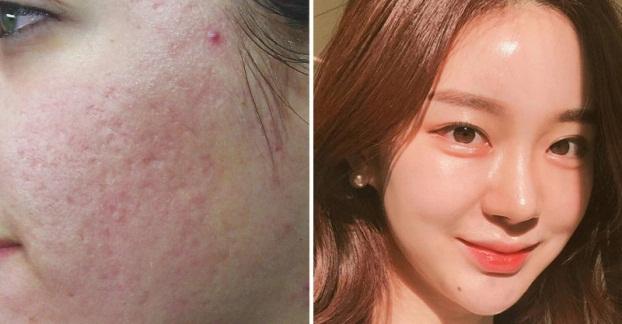 4 bí quyết làm mờ sẹo mụn giúp bạn lấy lại làn da đẹp và tự tin - Ảnh 1
