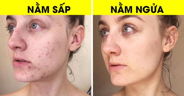 Tư thế ngủ có ảnh hưởng như thế nào tới làn da của bạn? - Ảnh 1