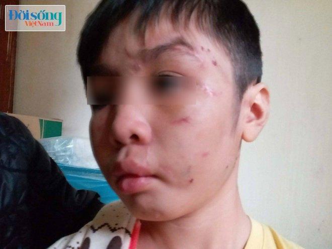Bé trai 10 tuổi bị bố ruột và mẹ kế bạo hành ở Hà Nội: 2 năm rồi cháu mới được bát phở ngon như vậy - Ảnh 1