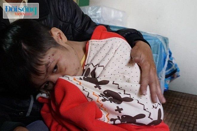 Bé trai 10 tuổi bị bố ruột và mẹ kế bạo hành ở Hà Nội: 2 năm rồi cháu mới được bát phở ngon như vậy - Ảnh 2