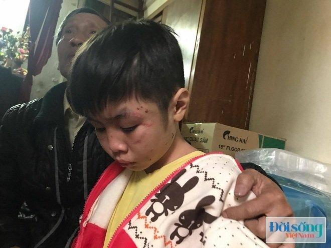 Bé trai 10 tuổi bị bố ruột và mẹ kế bạo hành ở Hà Nội: 2 năm rồi cháu mới được bát phở ngon như vậy - Ảnh 3