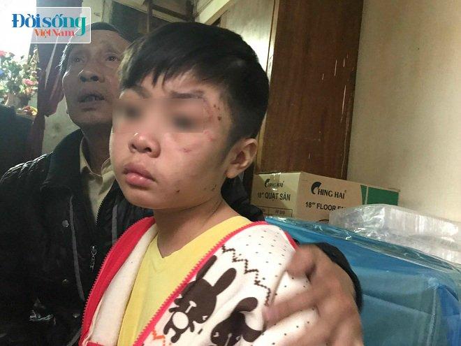 Bé trai 10 tuổi bị bố ruột và mẹ kế bạo hành ở Hà Nội: 2 năm rồi cháu mới được bát phở ngon như vậy - Ảnh 4