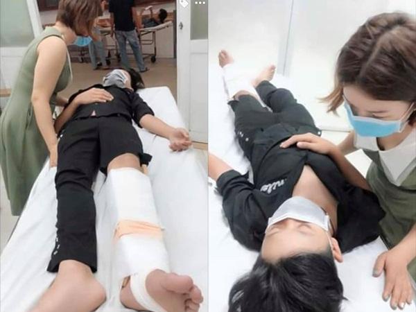 Đàm Vĩnh Hưng xót xa khi sao nhí 13 tuổi bị tai nạn, chân gãy tận 3 vị trí