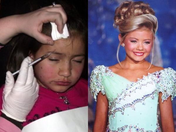 Hành trình giữ gìn nhan sắc đầy đau đớn của bé gái 8 tuổi với người mẹ ôm mộng muốn con làm siêu sao